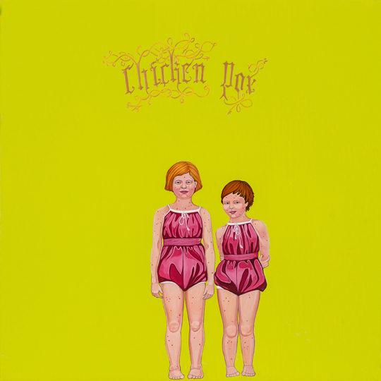 chickenpox-kimberlydenise